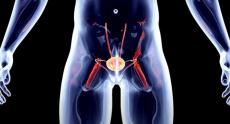 Рубрика «Совет врача». Рак предстательной железы
