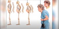 Рубрика «Совет врача». Остеопороз